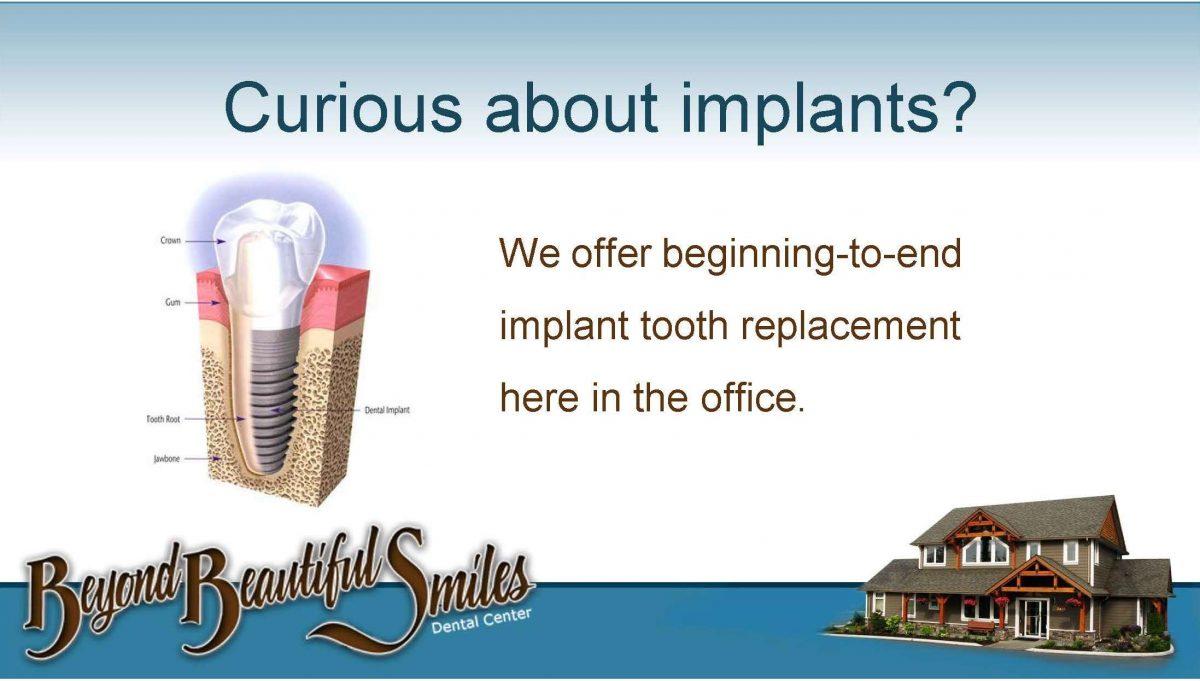 Implants-1200x681.jpg
